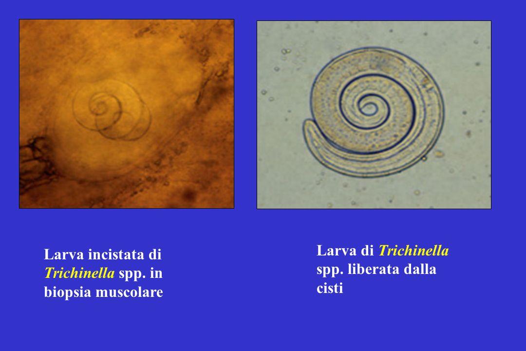 Larva di Trichinella spp. liberata dalla cisti