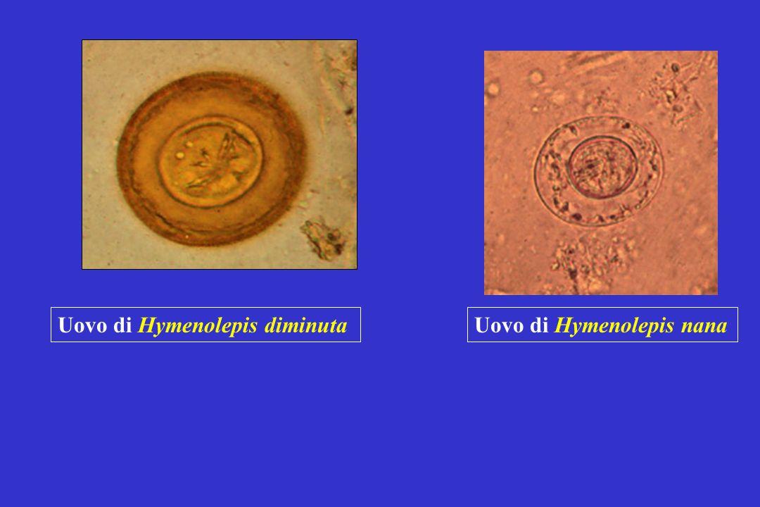 Uovo di Hymenolepis diminuta