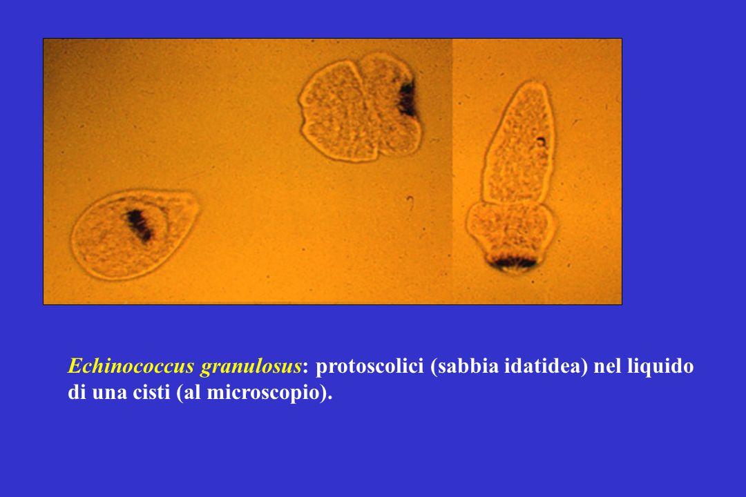 Echinococcus granulosus: protoscolici (sabbia idatidea) nel liquido di una cisti (al microscopio).