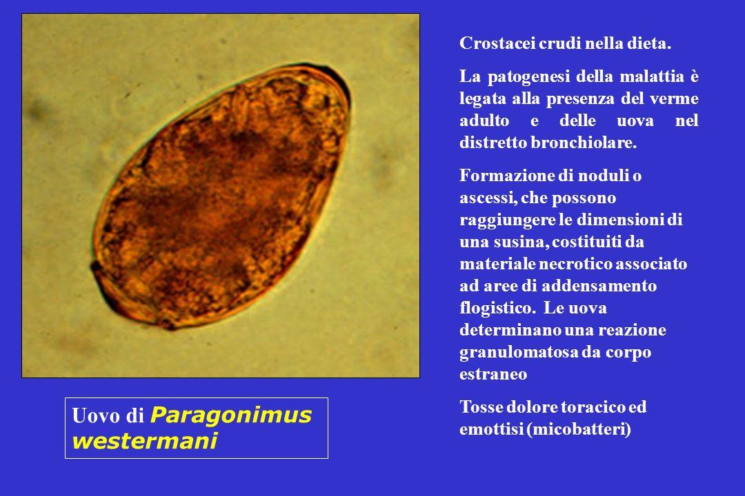 Uovo di Paragonimus westermani Crostacei crudi nella dieta.