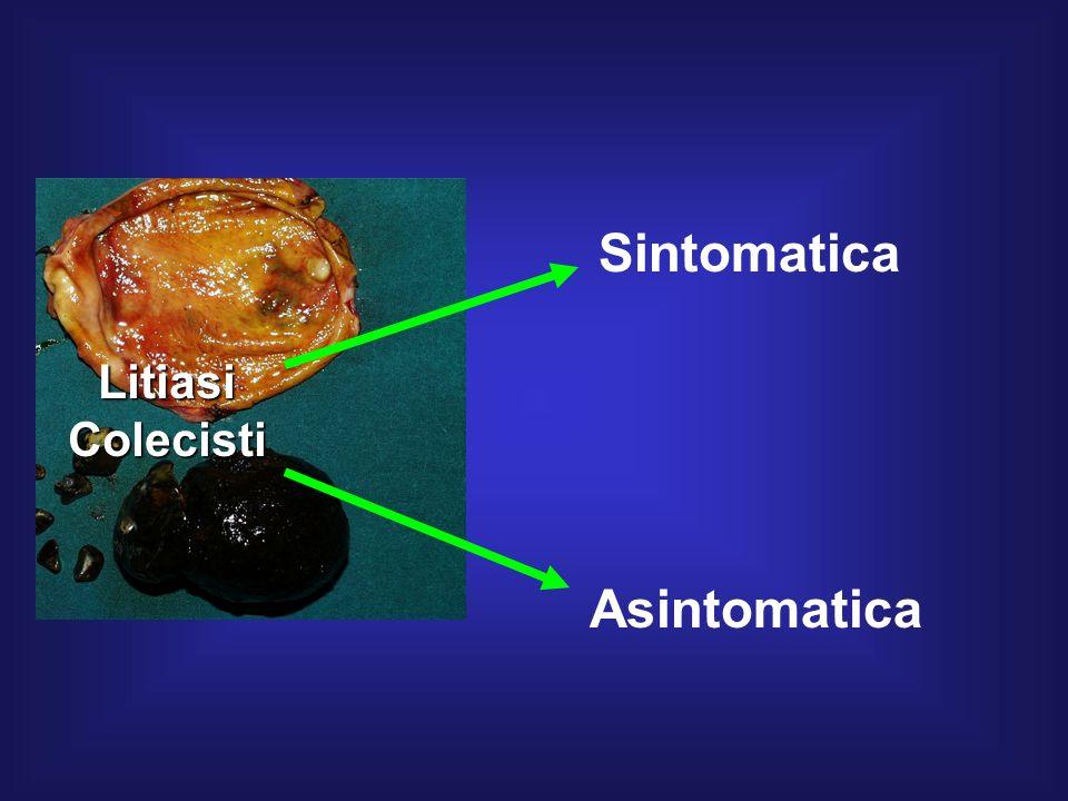 Sintomatica Litiasi Colecisti Asintomatica