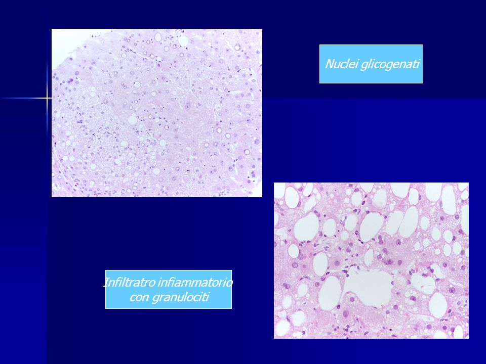 Infiltratro infiammatorio