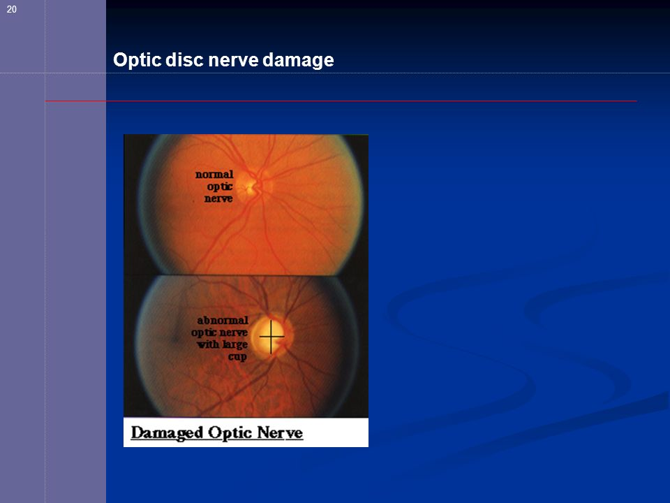 Optic disc nerve damage