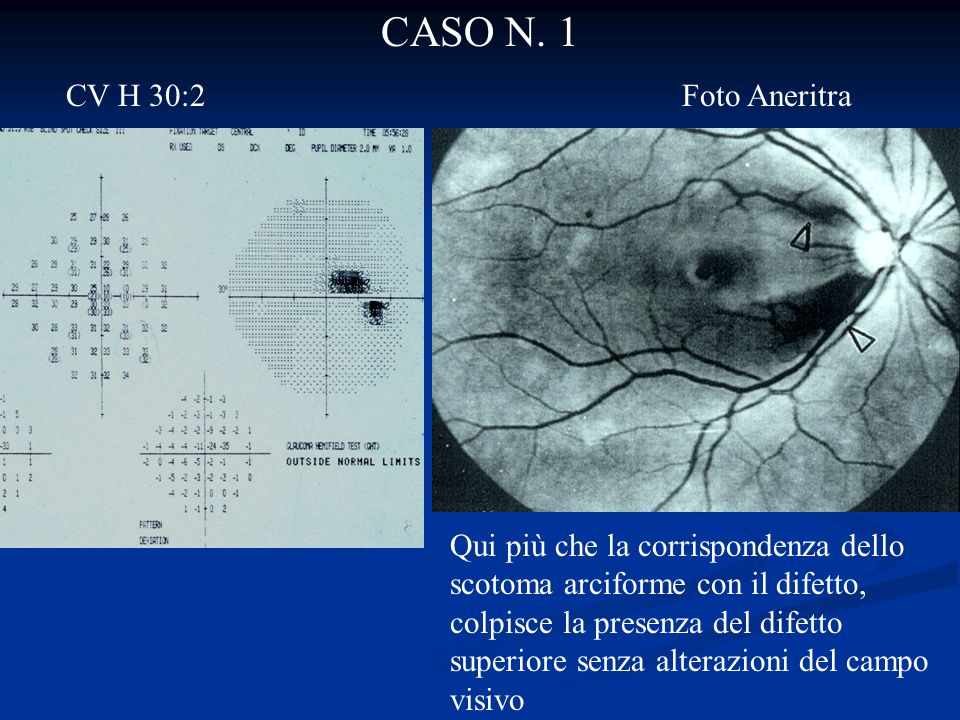 CASO N. 1 CV H 30:2 Foto Aneritra