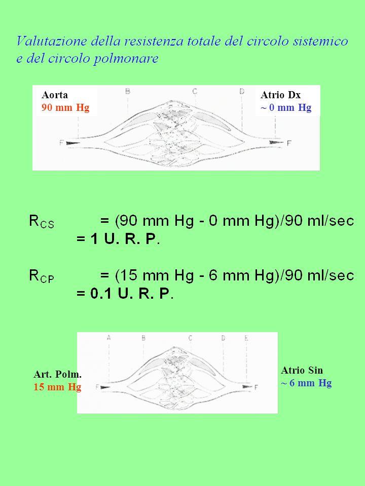 Aorta 90 mm Hg Atrio Dx  0 mm Hg Atrio Sin  6 mm Hg Art. Polm. 15 mm Hg