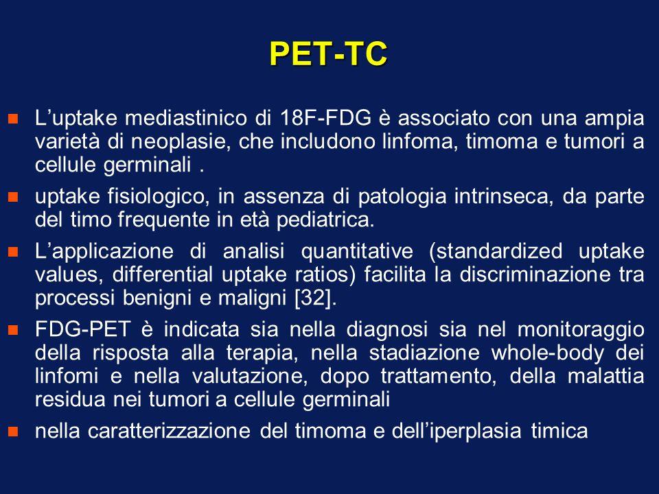 PET-TC L'uptake mediastinico di 18F-FDG è associato con una ampia varietà di neoplasie, che includono linfoma, timoma e tumori a cellule germinali .