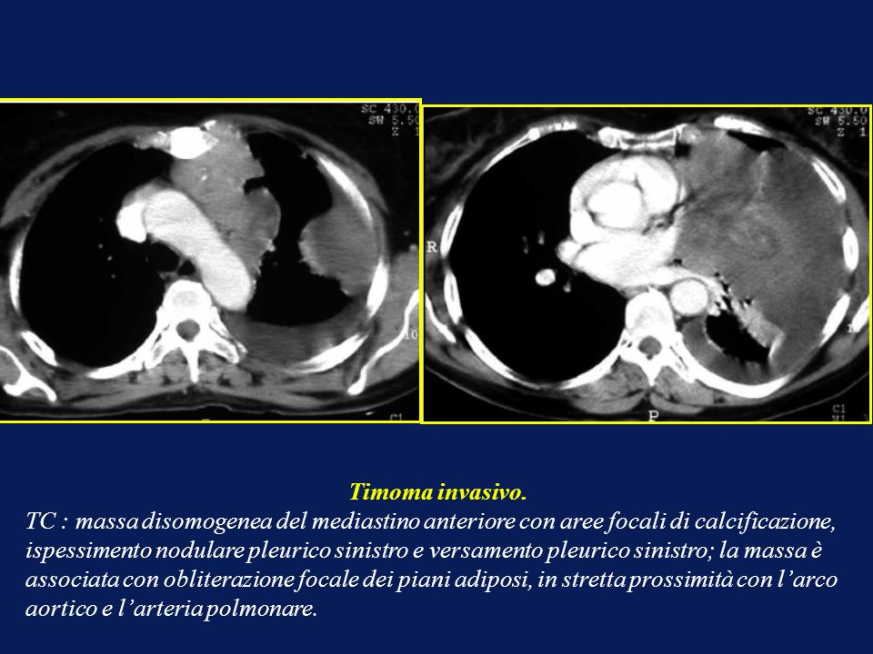 Imaging del mediastino ppt video online scaricare for Piani del ponte anteriore