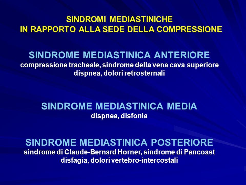 SINDROME MEDIASTINICA ANTERIORE