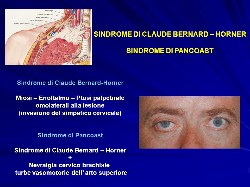 SINDROME DI CLAUDE BERNARD – HORNER SINDROME DI PANCOAST
