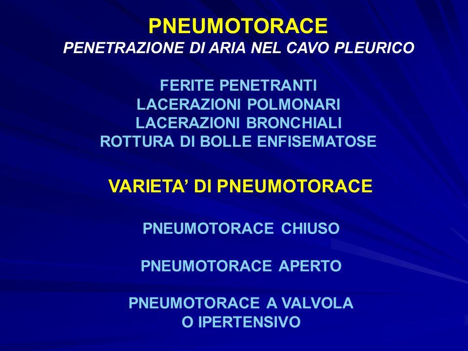 PNEUMOTORACE VARIETA' DI PNEUMOTORACE