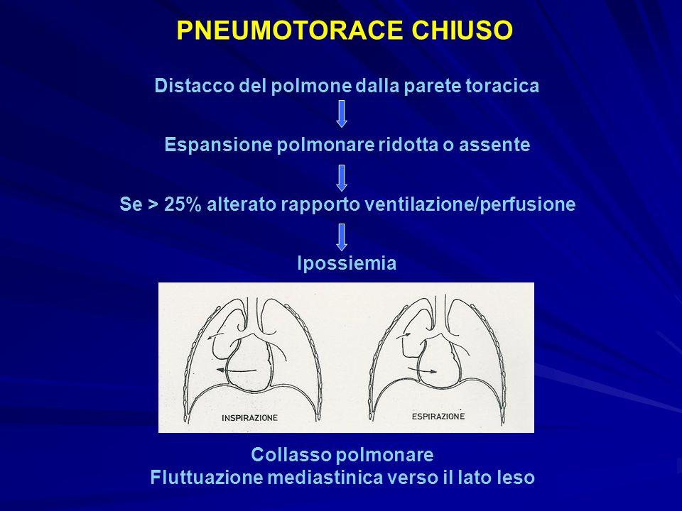 PNEUMOTORACE CHIUSO Distacco del polmone dalla parete toracica
