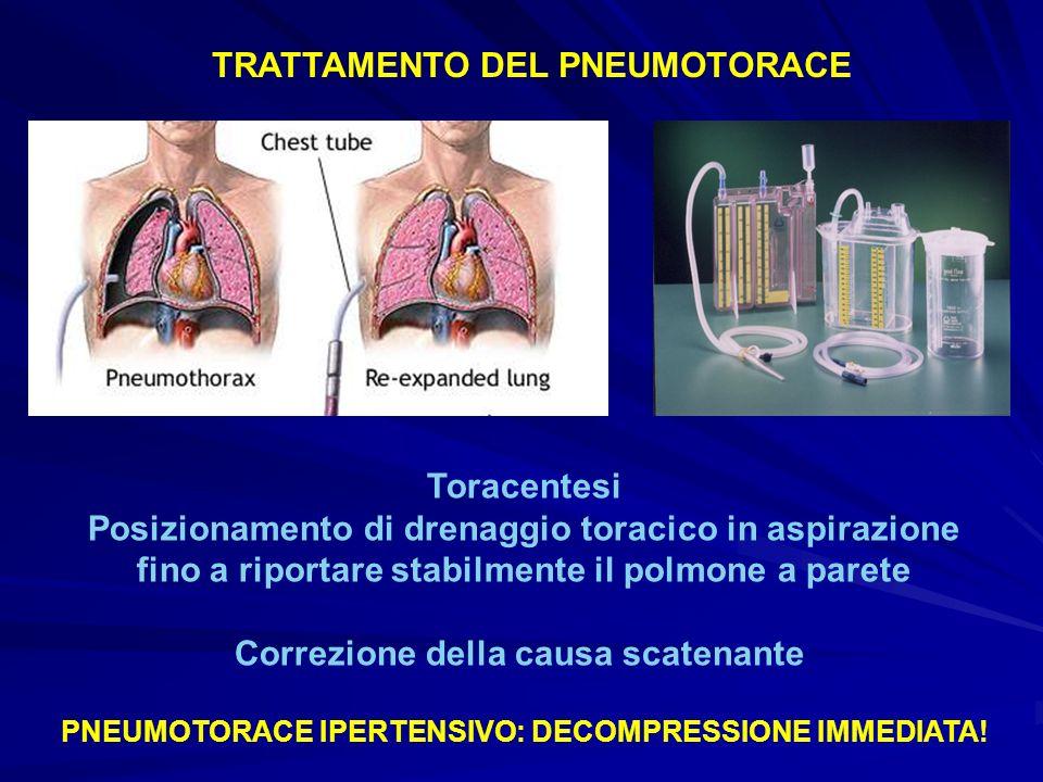 TRATTAMENTO DEL PNEUMOTORACE