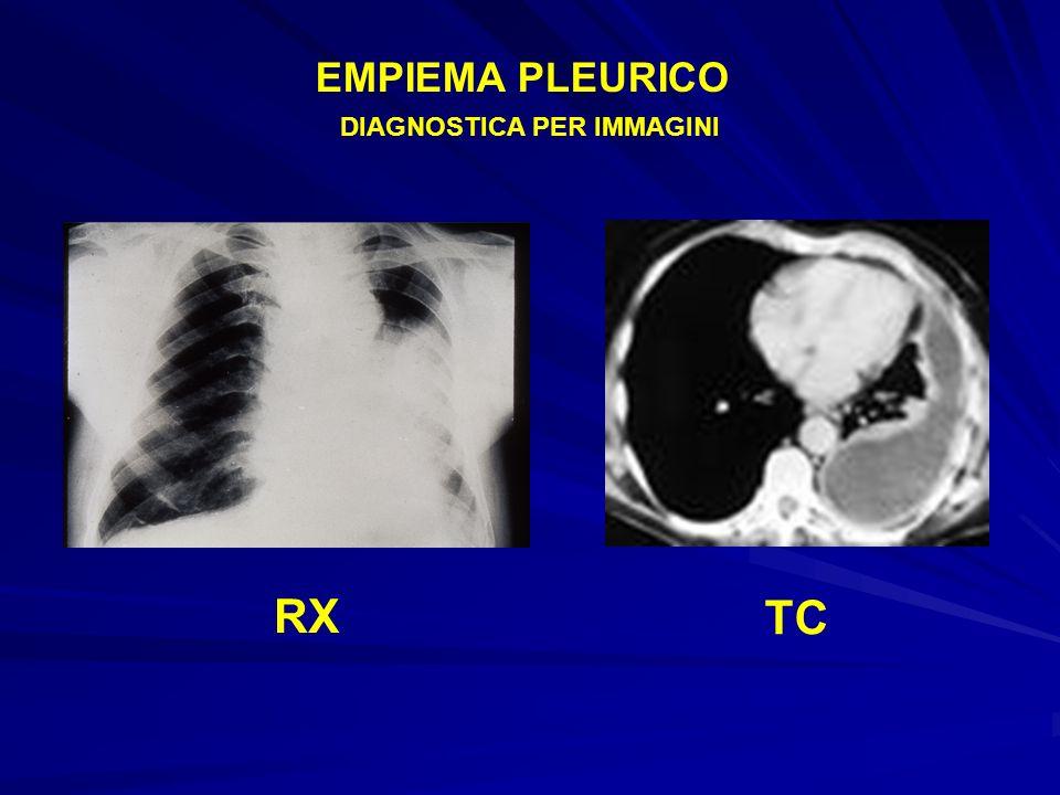EMPIEMA PLEURICO DIAGNOSTICA PER IMMAGINI RX TC
