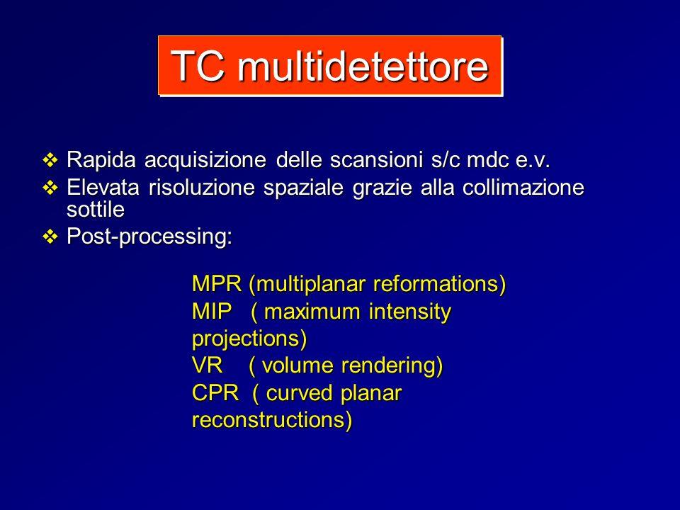 TC multidetettore Rapida acquisizione delle scansioni s/c mdc e.v.