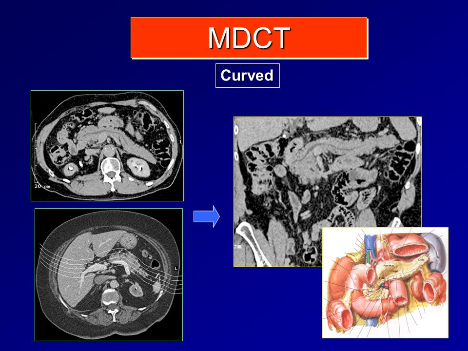 MDCT Curved
