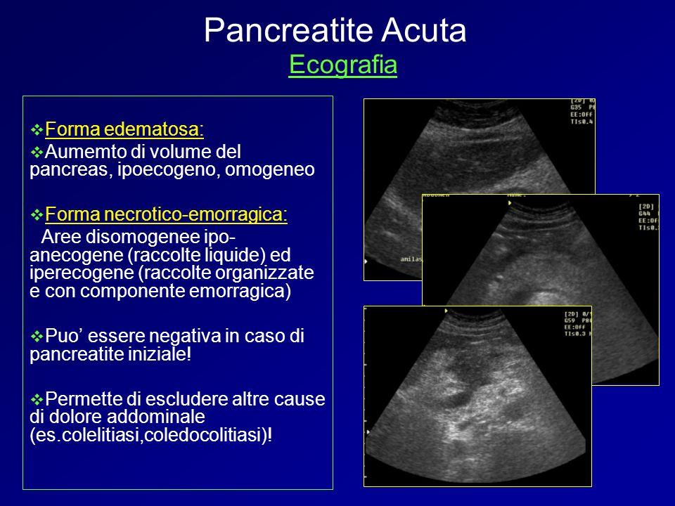 Pancreatite Acuta Ecografia Forma edematosa: