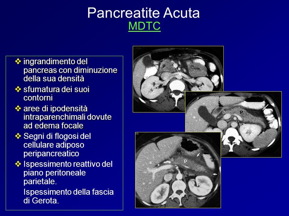 Pancreatite Acuta MDTC