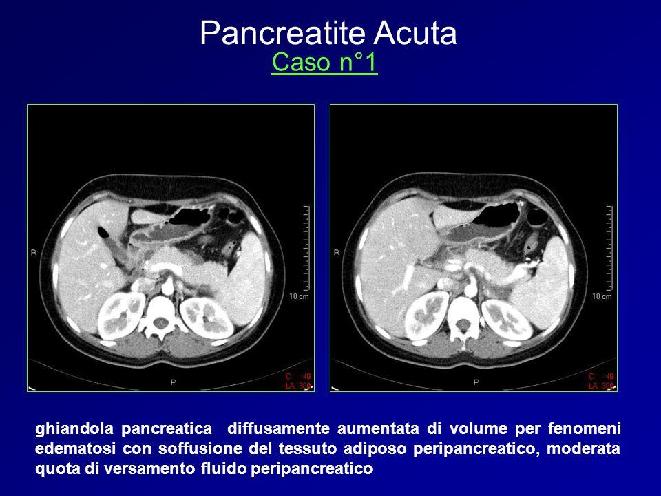 Pancreatite Acuta Caso n°1