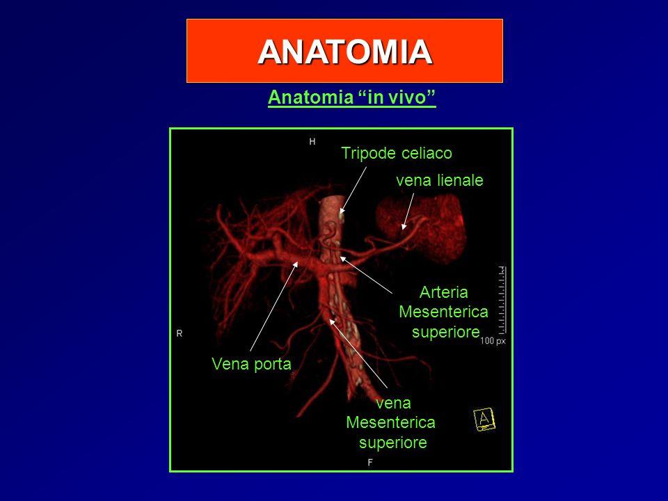 ANATOMIA Anatomia in vivo Tripode celiaco vena lienale Arteria