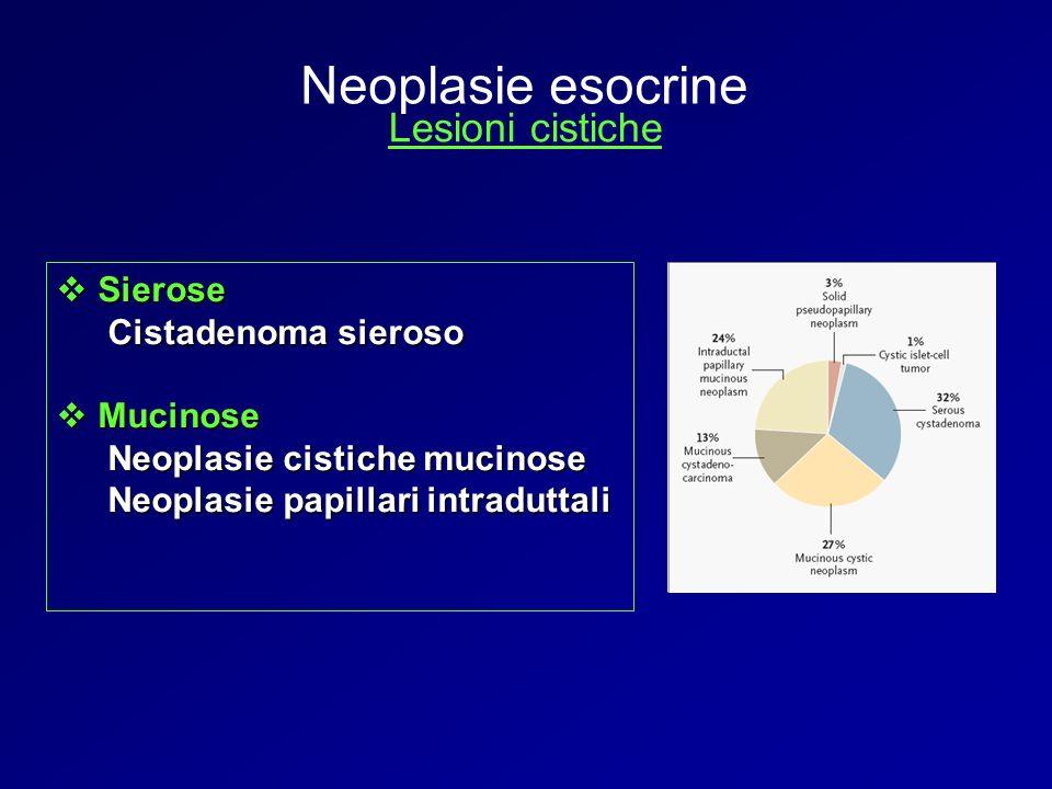 Neoplasie esocrine Lesioni cistiche Sierose Cistadenoma sieroso