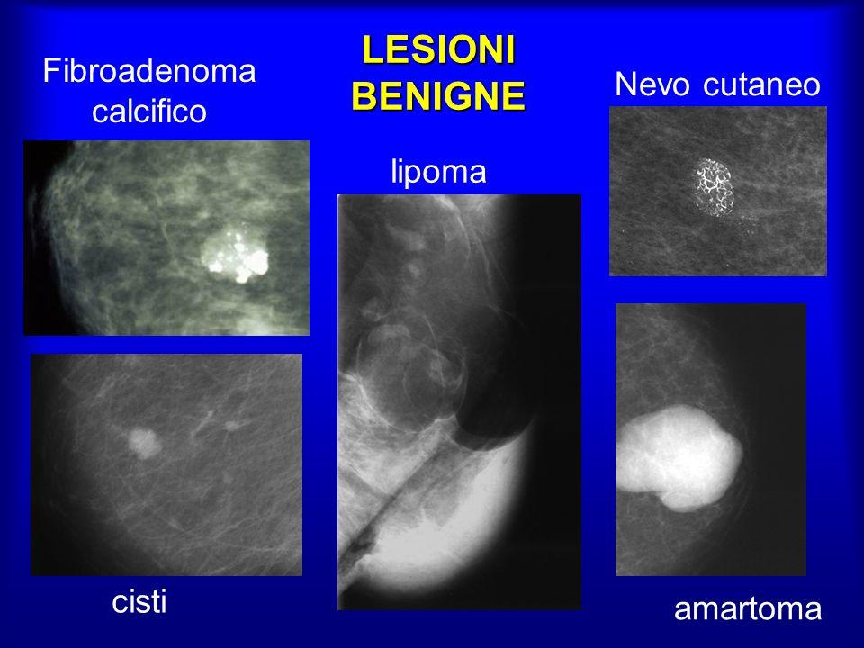 Fibroadenoma calcifico