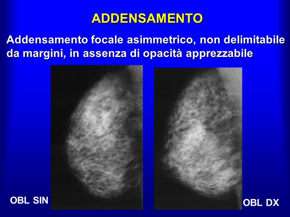 ADDENSAMENTO Addensamento focale asimmetrico, non delimitabile da margini, in assenza di opacità apprezzabile.