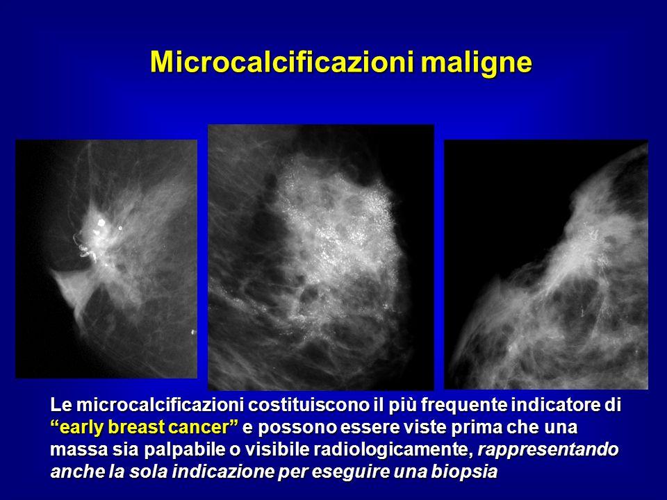 Microcalcificazioni maligne