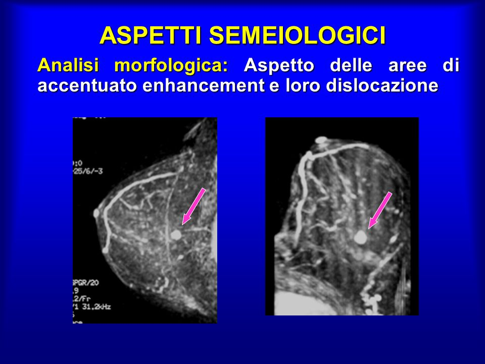 ASPETTI SEMEIOLOGICI Analisi morfologica: Aspetto delle aree di accentuato enhancement e loro dislocazione.