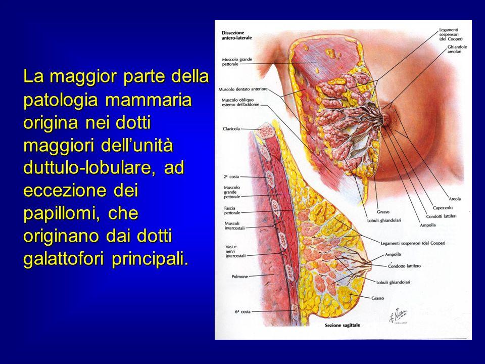 La maggior parte della patologia mammaria origina nei dotti maggiori dell'unità duttulo-lobulare, ad eccezione dei papillomi, che originano dai dotti galattofori principali.