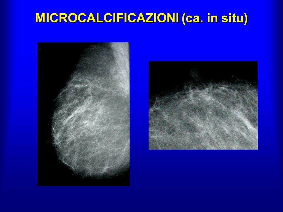 MICROCALCIFICAZIONI (ca. in situ)
