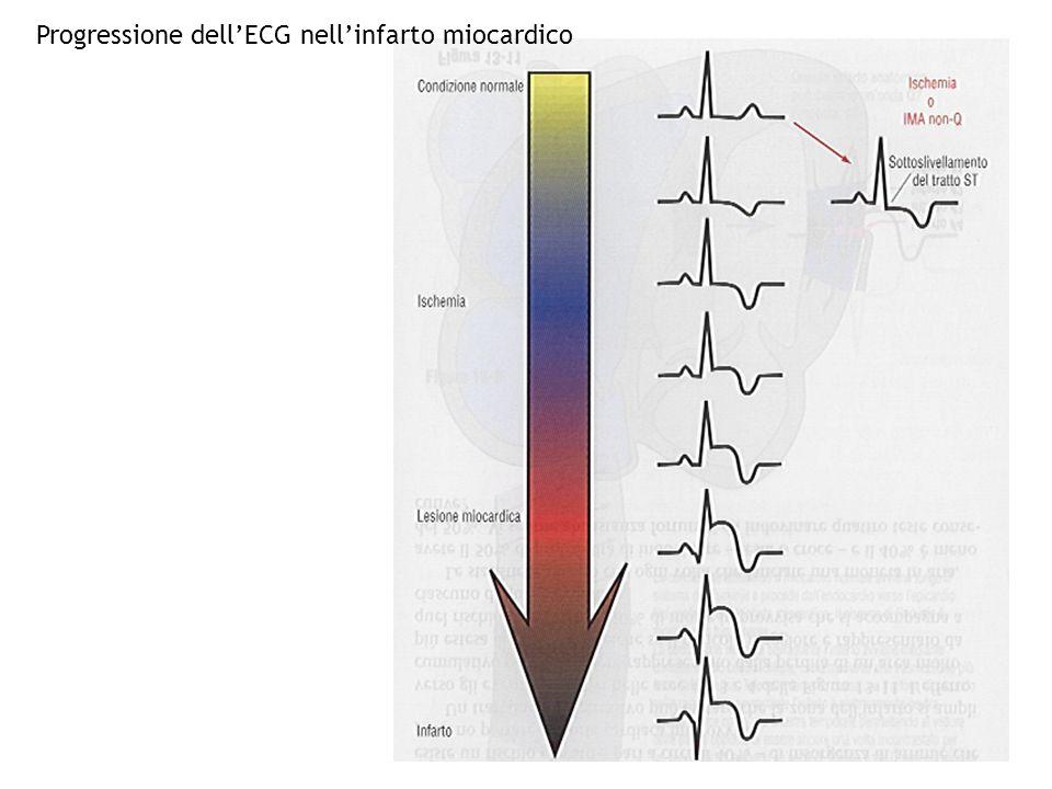 Progressione dell'ECG nell'infarto miocardico