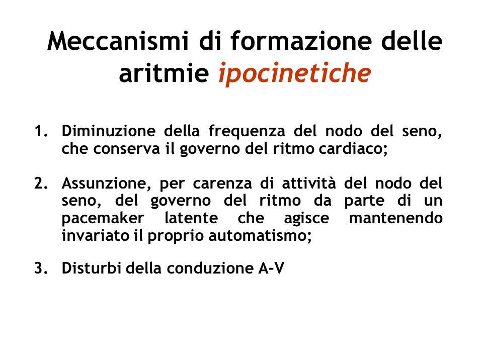 Meccanismi di formazione delle aritmie ipocinetiche