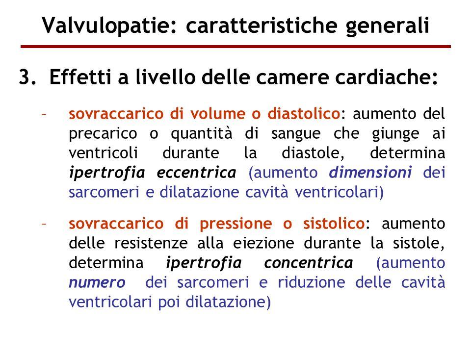 Valvulopatie: caratteristiche generali