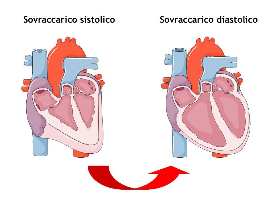 Sovraccarico sistolico