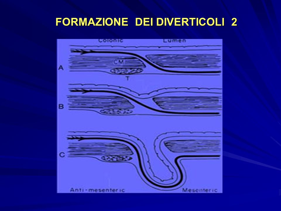 FORMAZIONE DEI DIVERTICOLI 2