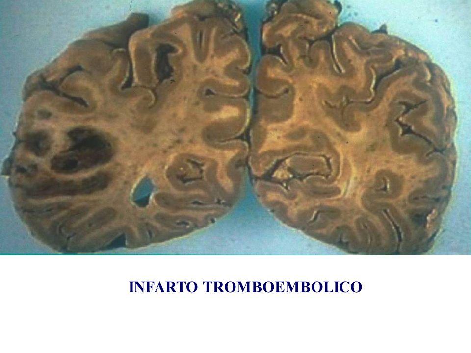 INFARTO TROMBOEMBOLICO