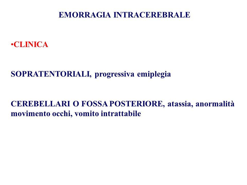 EMORRAGIA INTRACEREBRALE