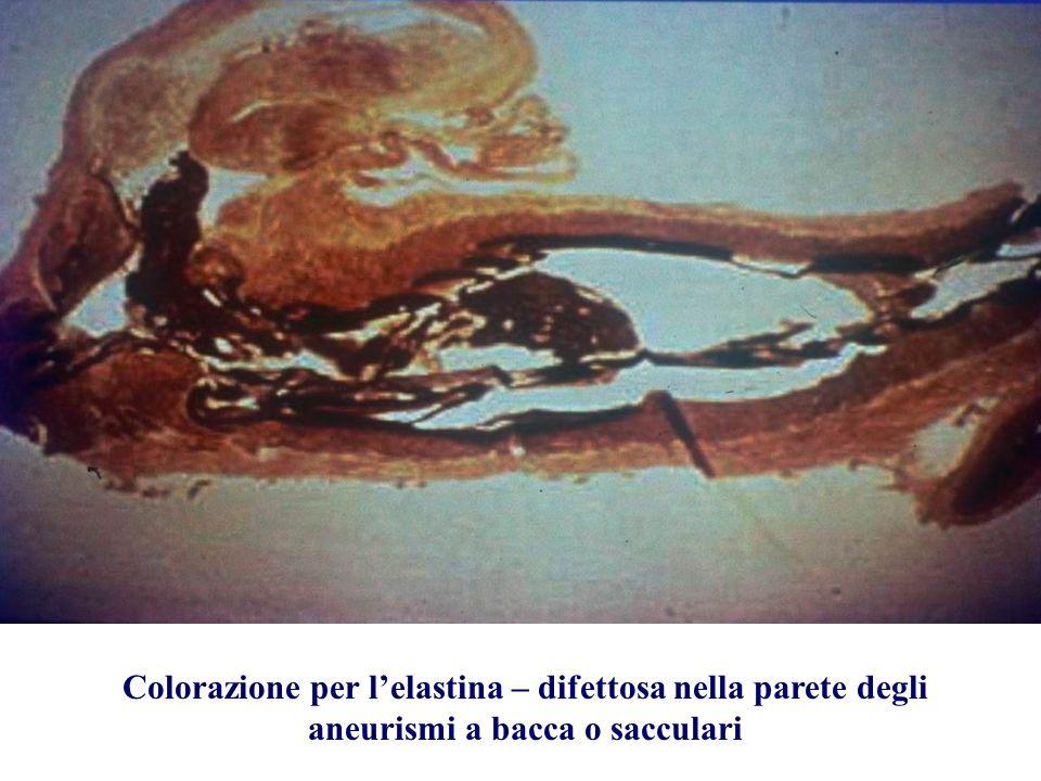 Colorazione per l'elastina – difettosa nella parete degli aneurismi a bacca o sacculari