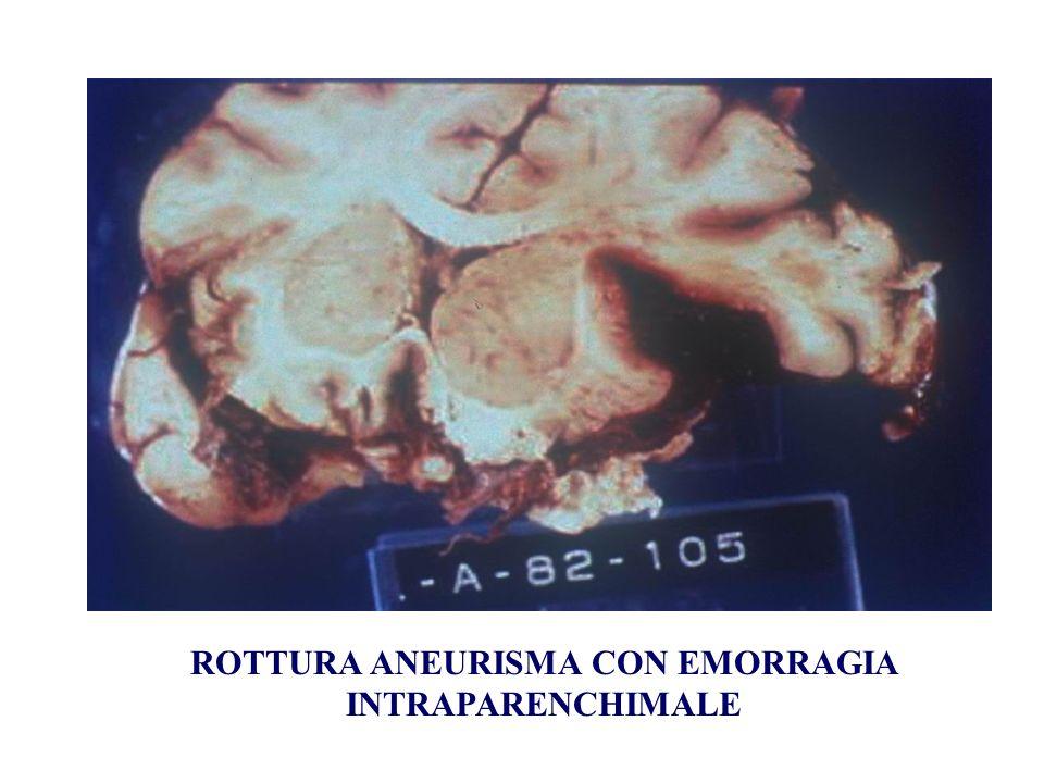 ROTTURA ANEURISMA CON EMORRAGIA INTRAPARENCHIMALE