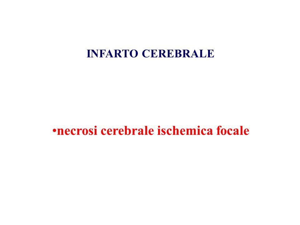 necrosi cerebrale ischemica focale