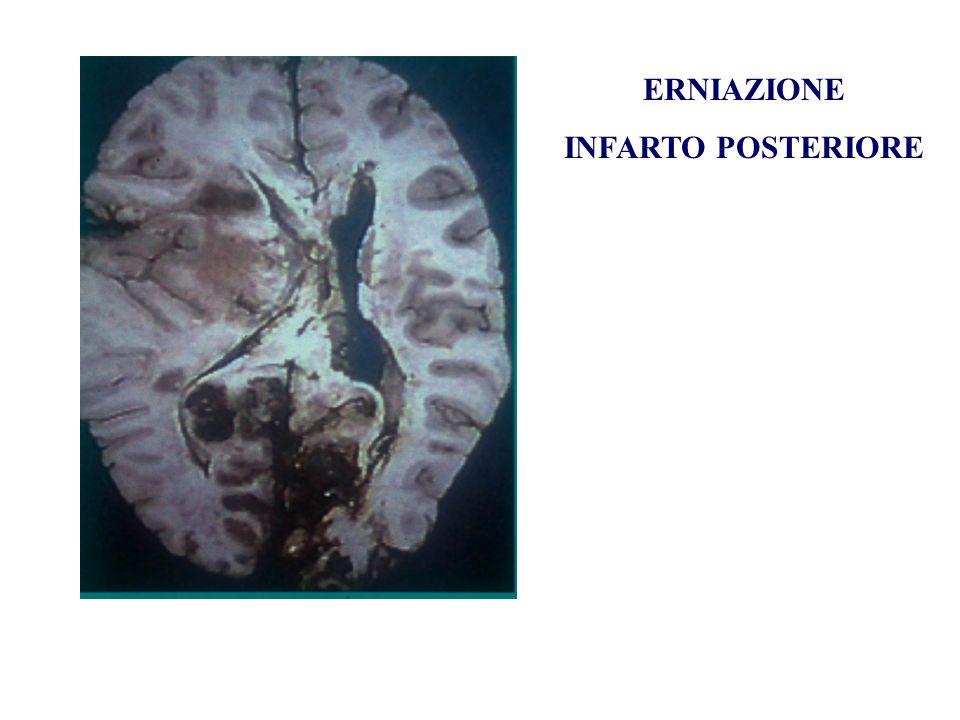 ERNIAZIONE INFARTO POSTERIORE