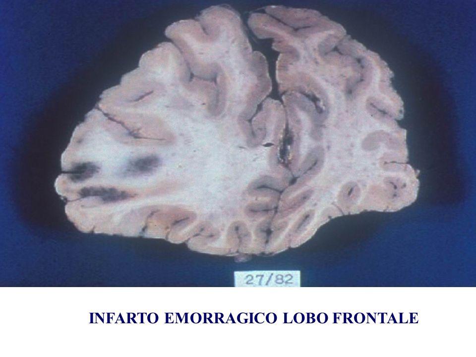 INFARTO EMORRAGICO LOBO FRONTALE