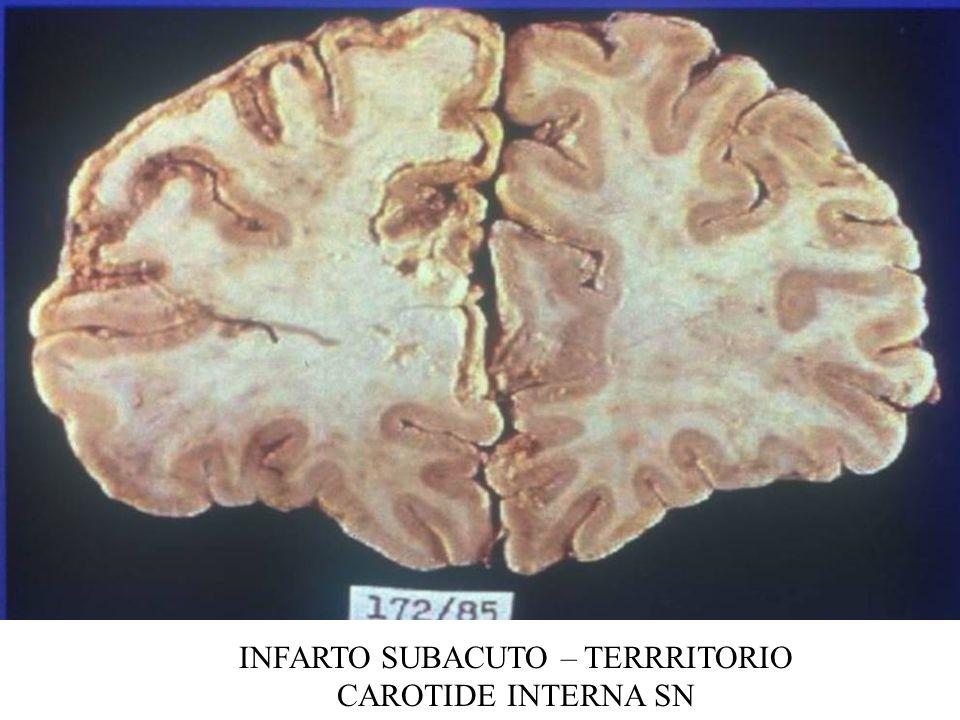 INFARTO SUBACUTO – TERRRITORIO CAROTIDE INTERNA SN