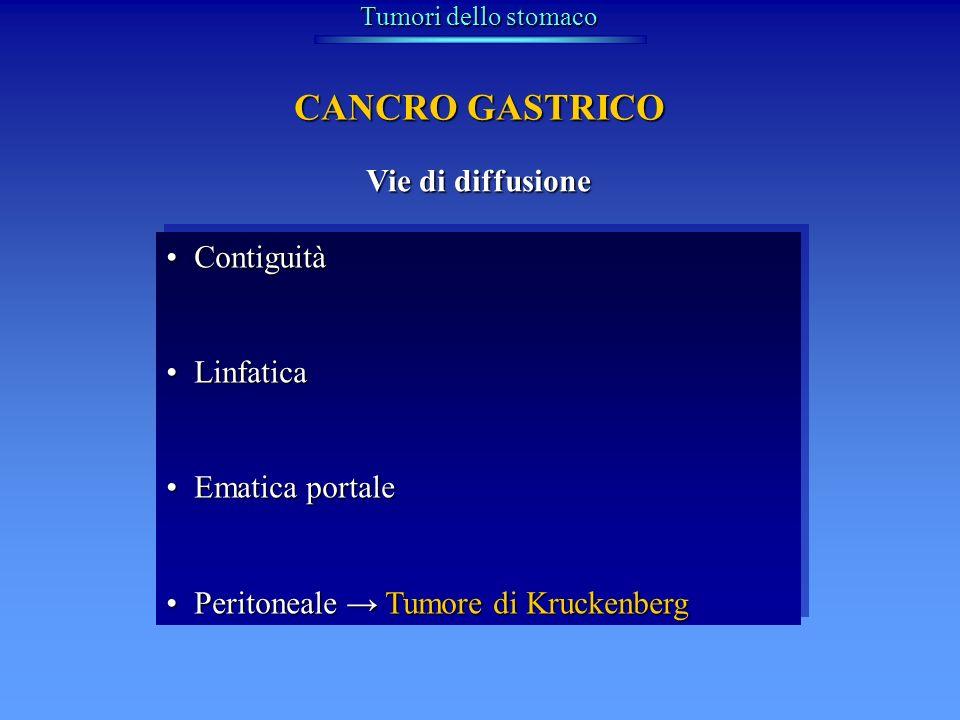 CANCRO GASTRICO Vie di diffusione Contiguità Linfatica Ematica portale
