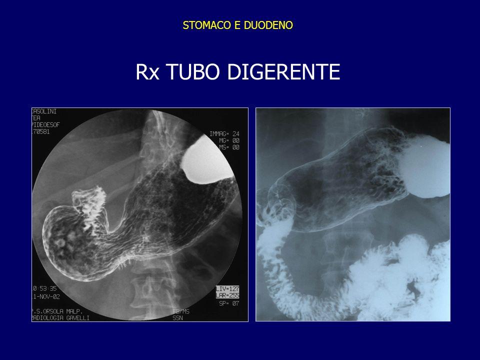 STOMACO E DUODENO Rx TUBO DIGERENTE