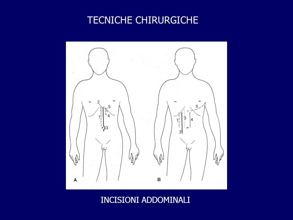 TECNICHE CHIRURGICHE INCISIONI ADDOMINALI