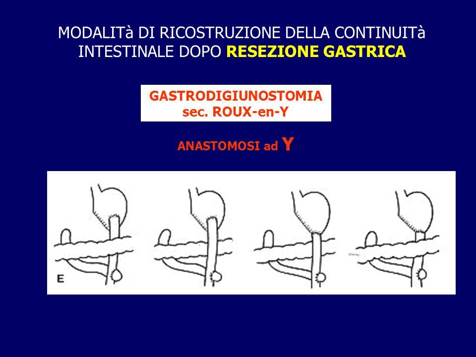 GASTRODIGIUNOSTOMIA sec. ROUX-en-Y
