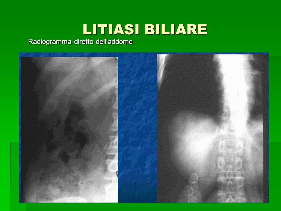 LITIASI BILIARE Radiogramma diretto dell'addome