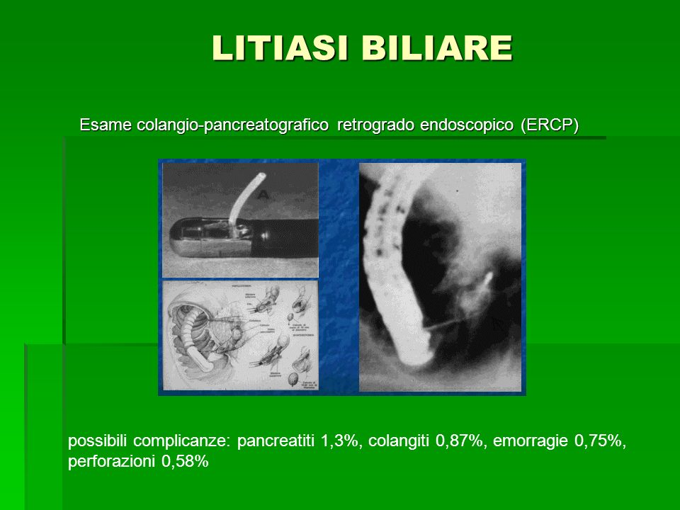 LITIASI BILIARE Esame colangio-pancreatografico retrogrado endoscopico (ERCP)