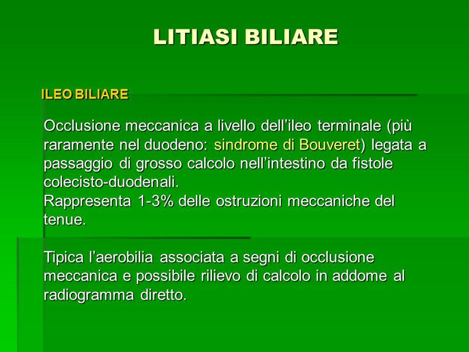 LITIASI BILIARE ILEO BILIARE.